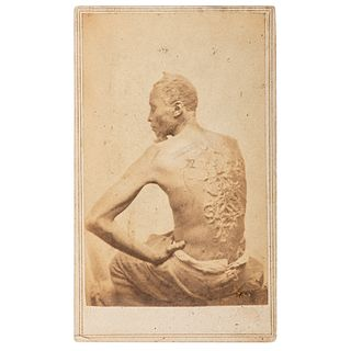 """CDV of Escaped Enslaved African American """"Gordon"""" Displaying his Scars"""