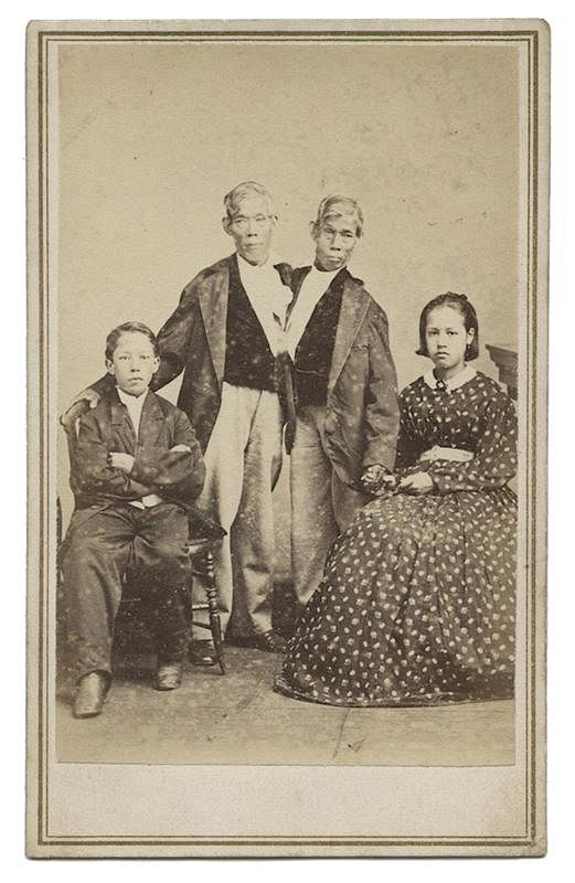 Chang And Eng Carte De Visite CDV By Potter Auctions